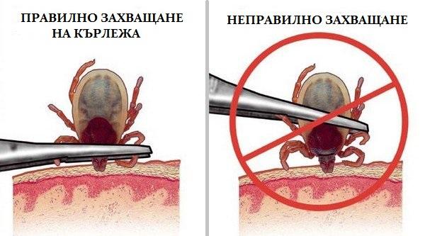 Как се захваща кърлеж при премахване